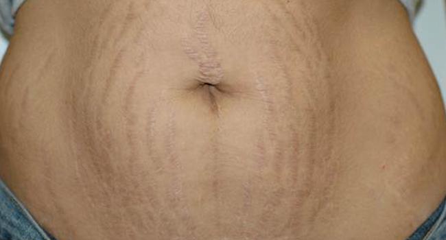 Celulite depois da gravidez